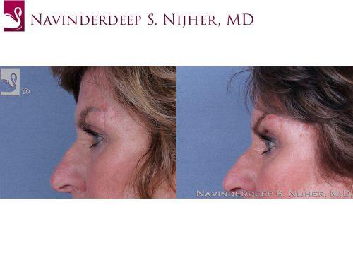 Eyelid Surgery Case #62120 (Image 3)