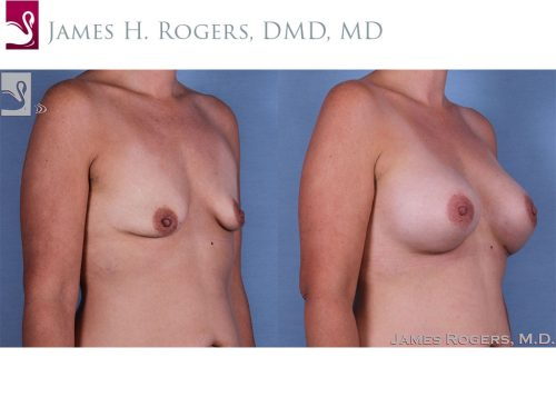 Breast Augmentation Case #62324 (Image 2)