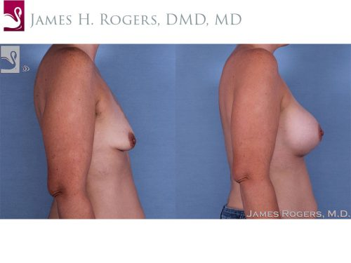 Breast Augmentation Case #62324 (Image 3)