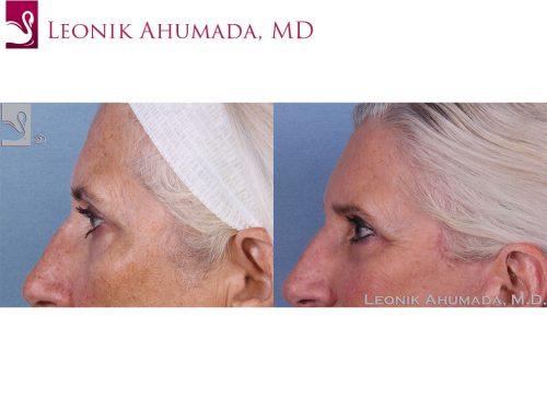 Eyelid Surgery Case #62547 (Image 3)