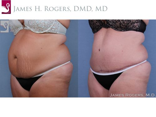 Abdominoplasty (Tummy Tuck) Case #62604 (Image 2)