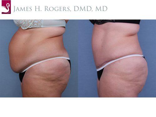 Abdominoplasty (Tummy Tuck) Case #62604 (Image 3)