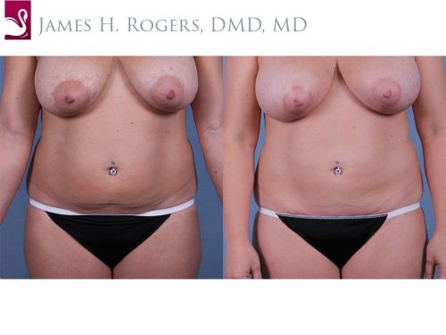 Abdominoplasty (Tummy Tuck) Case #63337 (Image 1)