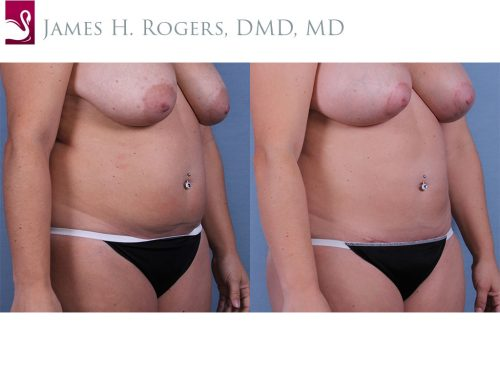 Abdominoplasty (Tummy Tuck) Case #63337 (Image 2)