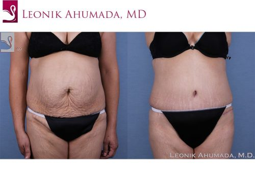 Abdominoplasty (Tummy Tuck) Case #63417 (Image 1)