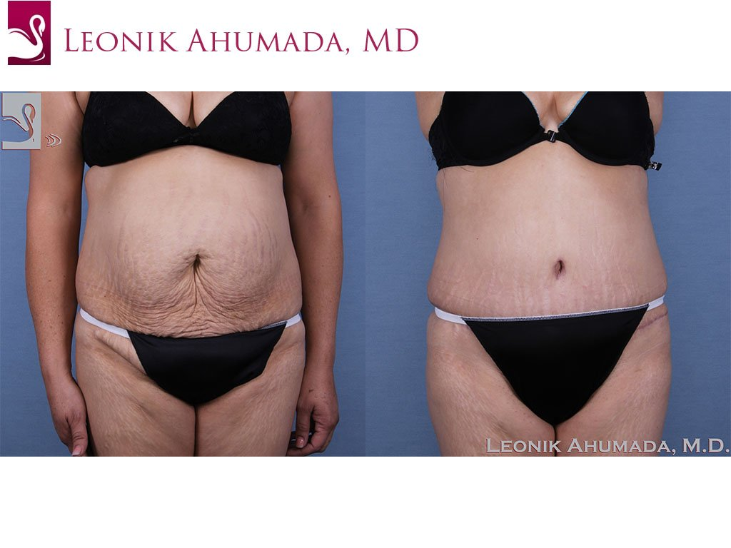 Abdominoplasty (Tummy Tuck) Case #63417 (Image 1)