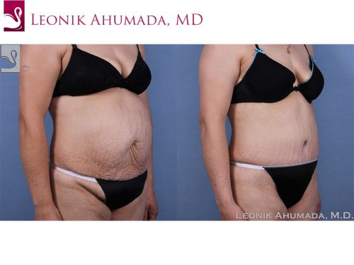 Abdominoplasty (Tummy Tuck) Case #63417 (Image 2)