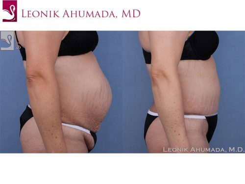 Abdominoplasty (Tummy Tuck) Case #63417 (Image 3)