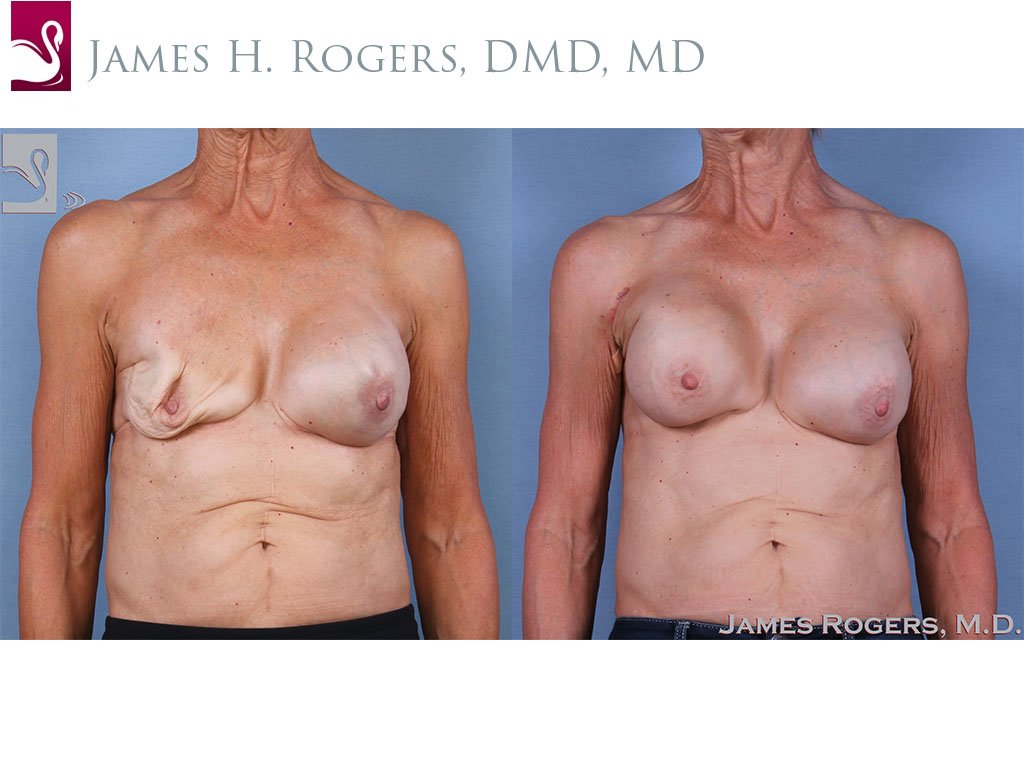 Breast Reconstruction Case #63441 (Image 1)