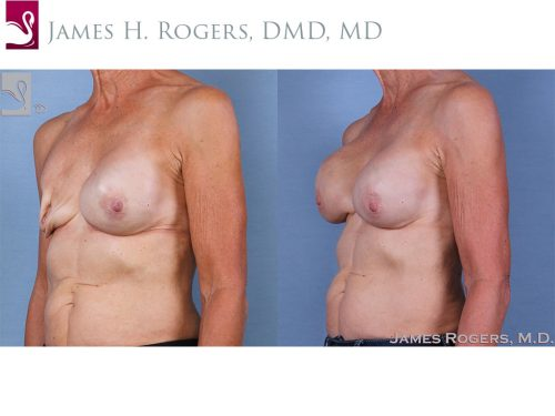 Breast Reconstruction Case #63441 (Image 2)