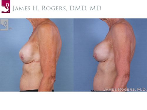Breast Reconstruction Case #63441 (Image 3)