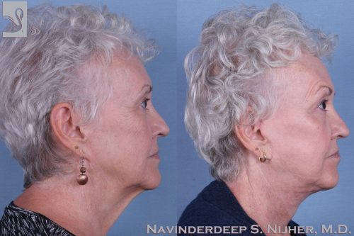 Face Lift Case #63607 (Image 3)