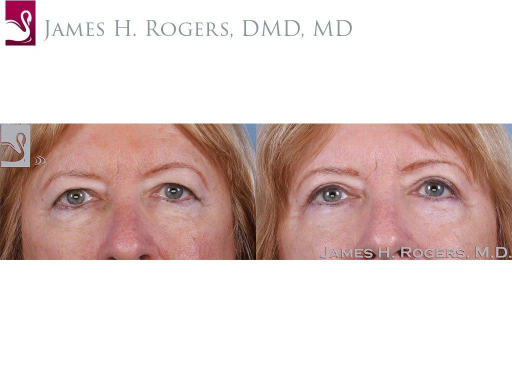 Eyelid Surgery Case #63653 (Image 1)