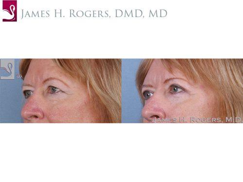 Eyelid Surgery Case #63653 (Image 2)