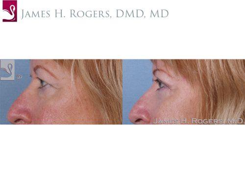 Eyelid Surgery Case #63653 (Image 3)
