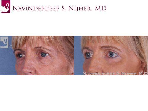 Eyelid Surgery Case #13051 (Image 2)