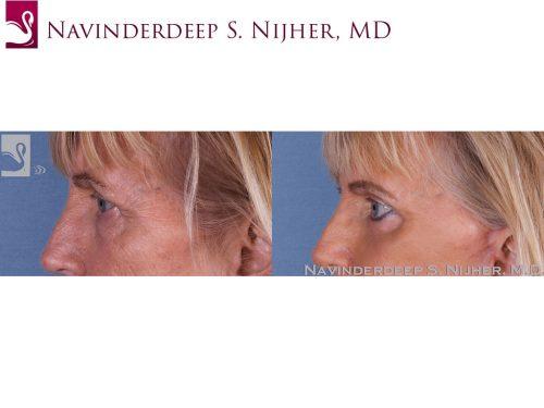 Eyelid Surgery Case #13051 (Image 3)