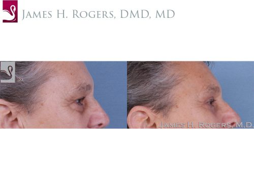 Eyelid Surgery Case #63345 (Image 3)