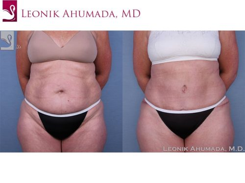 Abdominoplasty (Tummy Tuck) Case #63619 (Image 1)