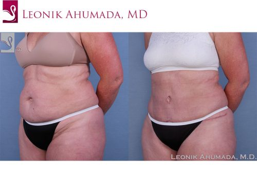 Abdominoplasty (Tummy Tuck) Case #63619 (Image 2)