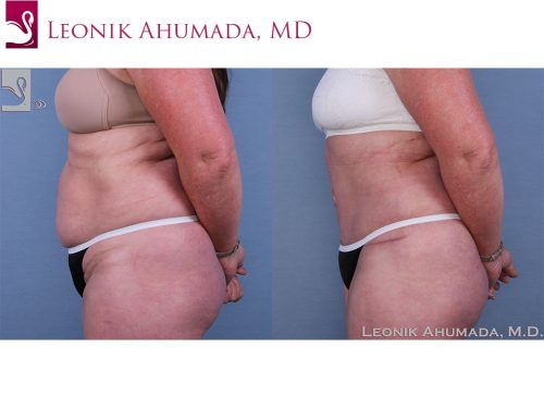 Abdominoplasty (Tummy Tuck) Case #63619 (Image 3)