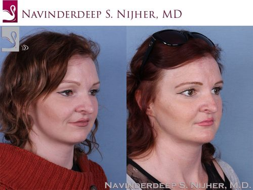 Facial Implants Case #64206 (Image 2)