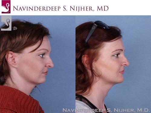Facial Implants Case #64206 (Image 3)