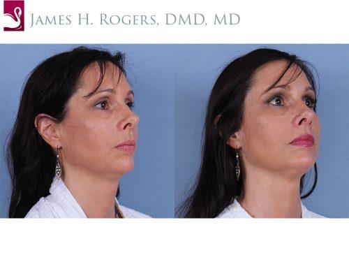 Facial Implants Case #31068 (Image 2)