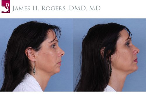 Facial Implants Case #31068 (Image 3)