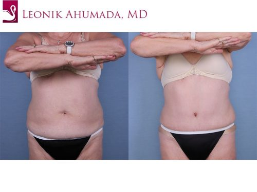 Abdominoplasty (Tummy Tuck) Case #52939 (Image 1)