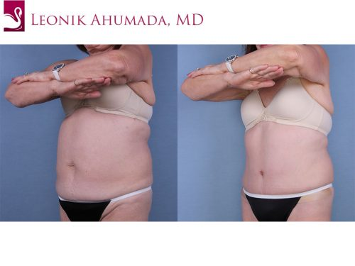 Abdominoplasty (Tummy Tuck) Case #52939 (Image 2)