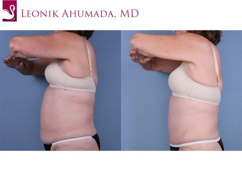 Abdominoplasty (Tummy Tuck) Case #52939 (Image 3)