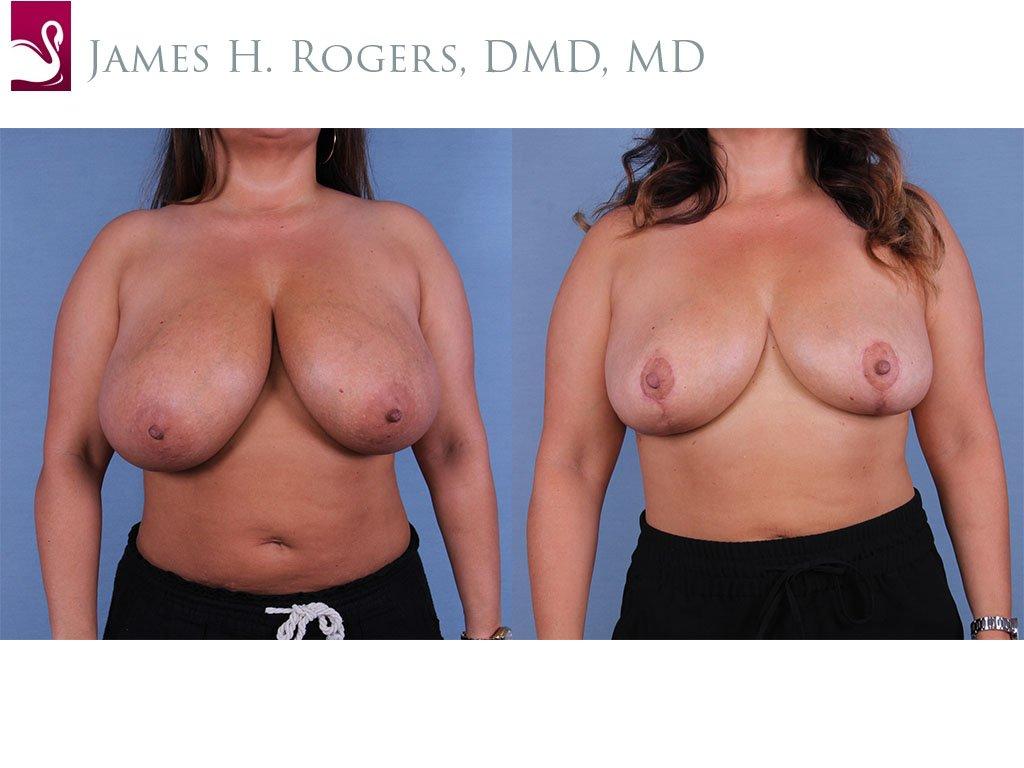 Female Breast Reduction Case #55476 (Image 1)