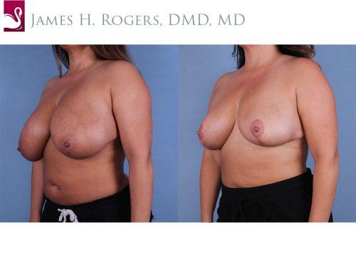 Female Breast Reduction Case #55476 (Image 2)