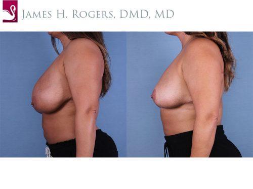 Female Breast Reduction Case #55476 (Image 3)