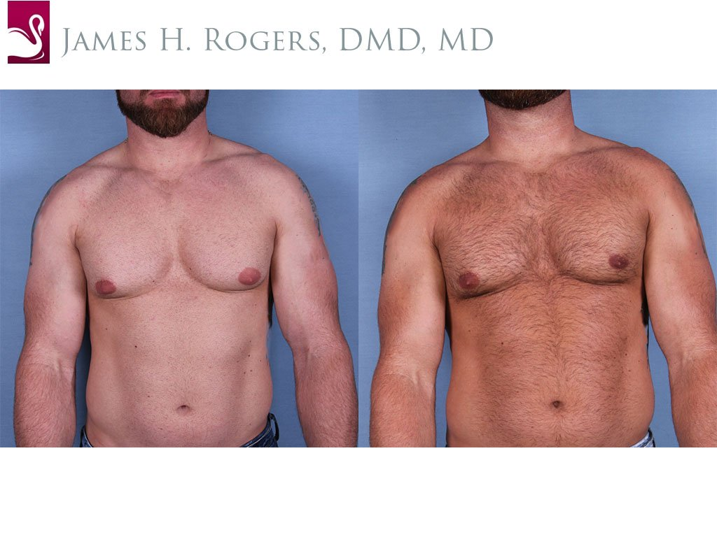 Male Breast Reduction Case #56146 (Image 1)