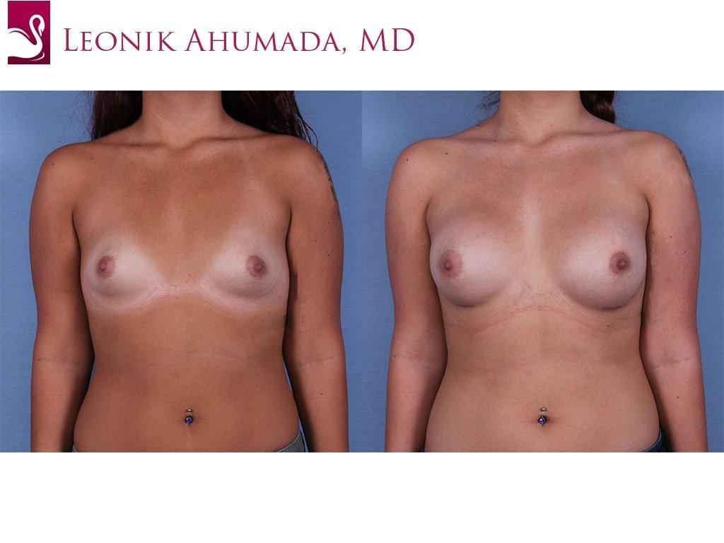 Breast Augmentation Case #60929 (Image 1)