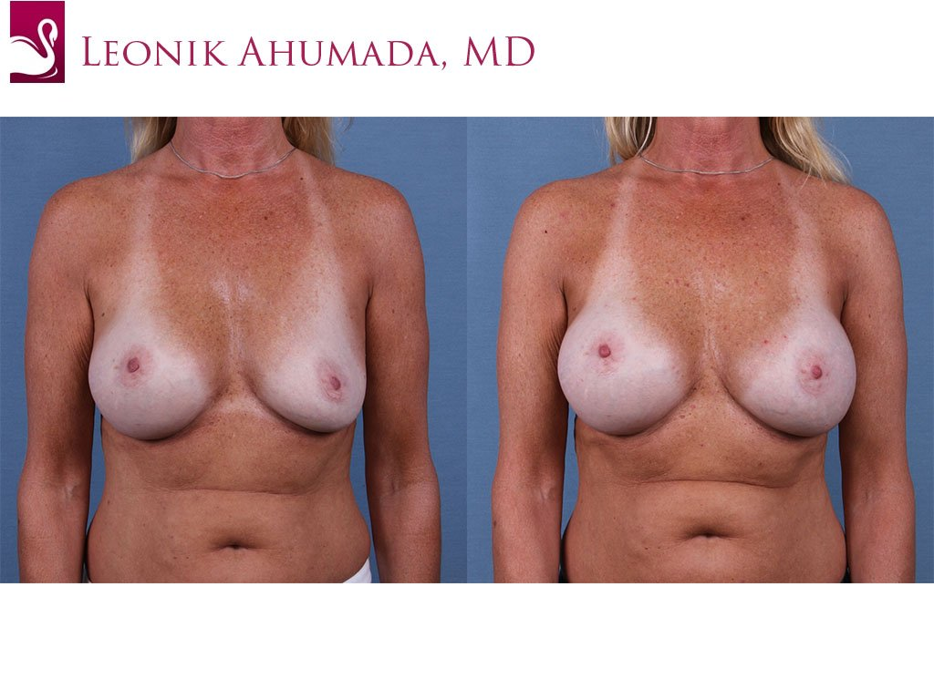 Breast Revisions Case #61348 (Image 1)