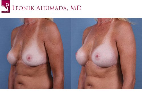 Breast Revisions Case #61348 (Image 2)