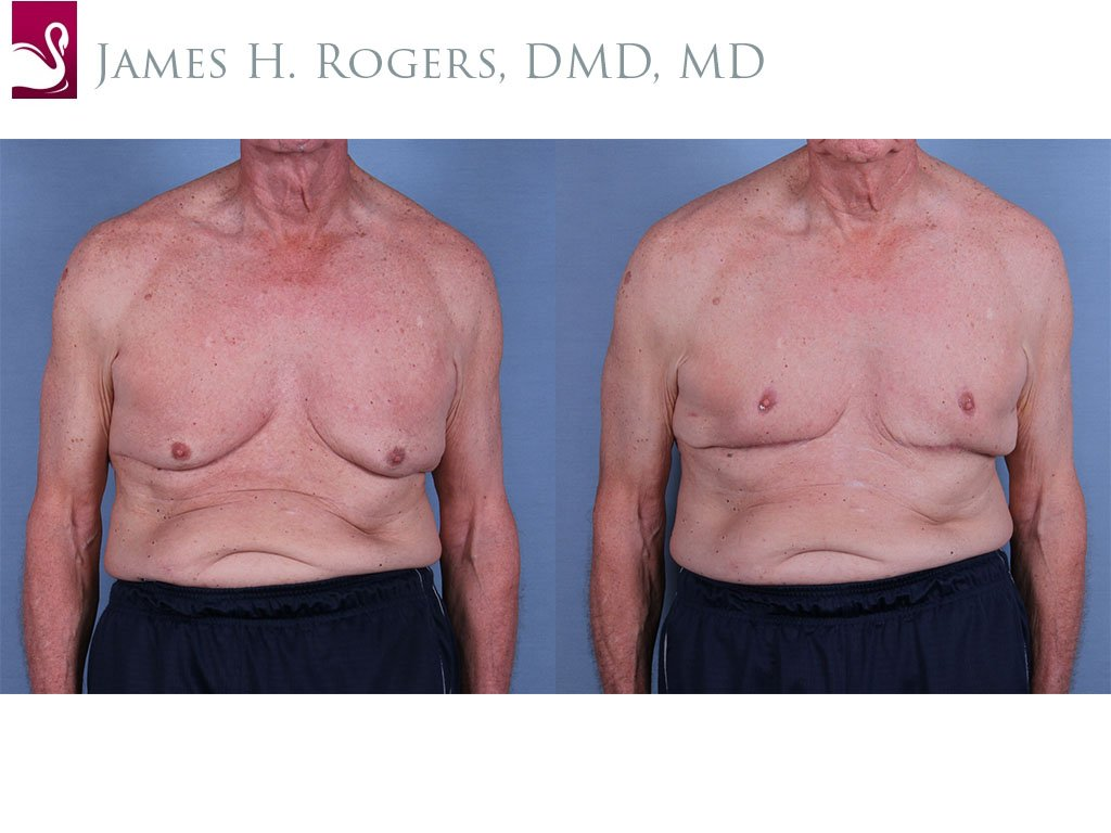 Male Breast Reduction Case #63133 (Image 1)