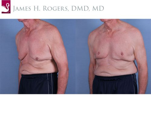 Male Breast Reduction Case #63133 (Image 2)