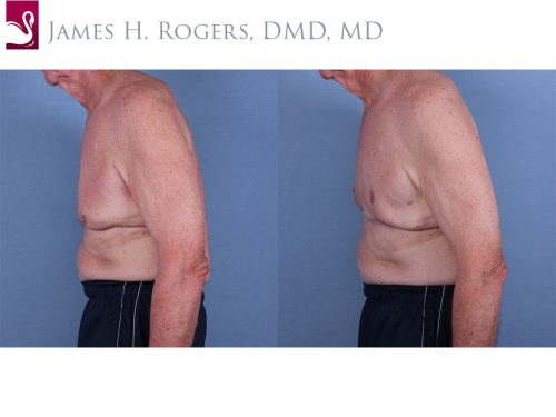 Male Breast Reduction Case #63133 (Image 3)