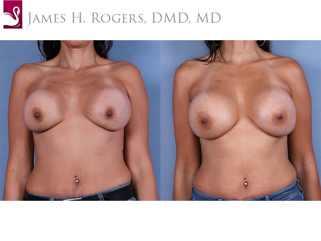 Breast Revisions Case #52842 (Image 1)