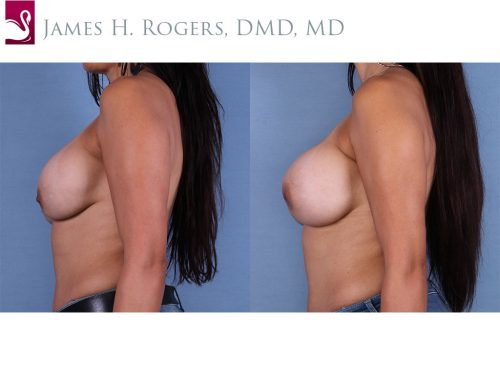 Breast Revisions Case #52842 (Image 3)