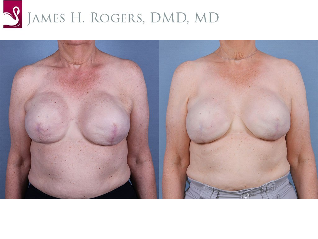 Breast Reconstruction Case #55453 (Image 1)