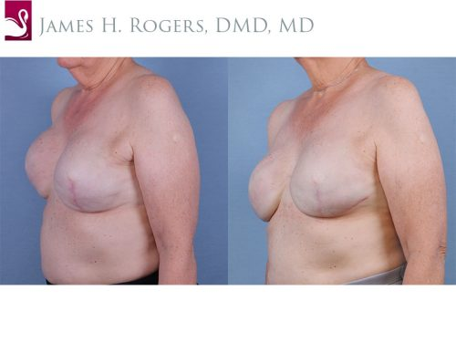Breast Reconstruction Case #55453 (Image 2)