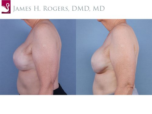Breast Reconstruction Case #55453 (Image 3)
