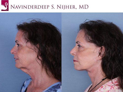 Face Lift Case #60098 (Image 3)