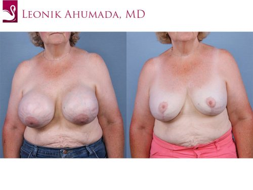 Female Breast Reduction Case #63420 (Image 1)
