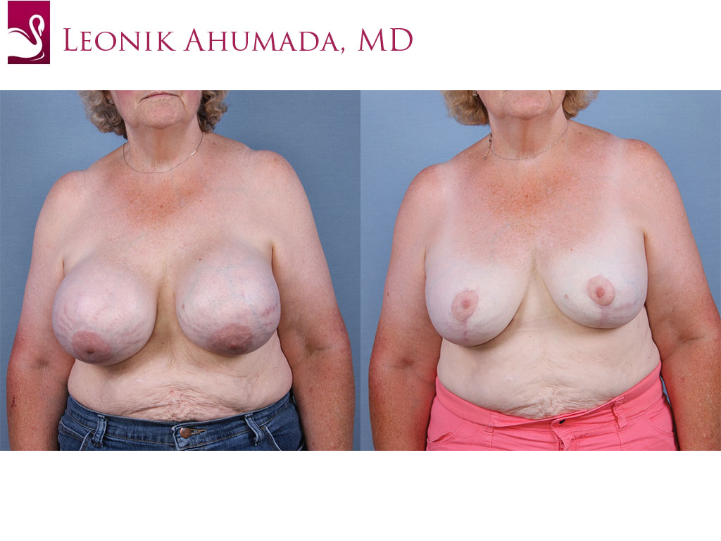 Female Breast Reduction Case #63420 (Image 1)